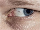 Study Says Diabetic Vision Loss On the Rise Globally