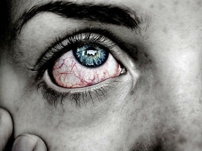 Addressing Dry Eye With Patients