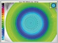 OCULUS Keratograph: OxiMap – Visualizing Oxygen Transmissibility of Soft Contact Lenses